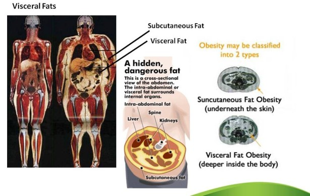 visceral-fat